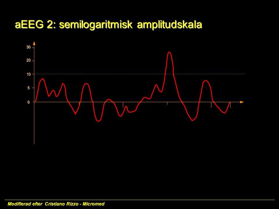 aEEG2:semilogaritmisk amplitudskala aEEG 2: semilogaritmisk amplitudskala 20 10 5 0 30 Modifierad efter Cristiano Rizzo - Micromed