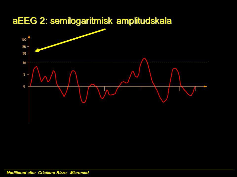 100 50 20 10 5 0 aEEG2:semilogaritmisk amplitudskala aEEG 2: semilogaritmisk amplitudskala