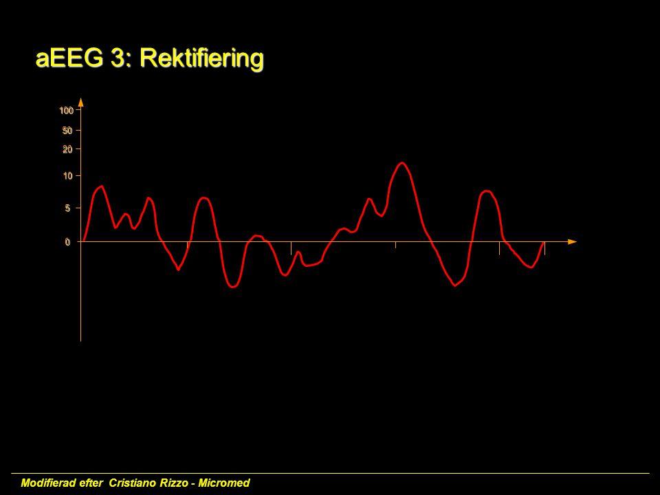 aEEG 3: Rektifiering aEEG 3: Rektifiering 100 50 20 10 5 0 Modifierad efter Cristiano Rizzo - Micromed