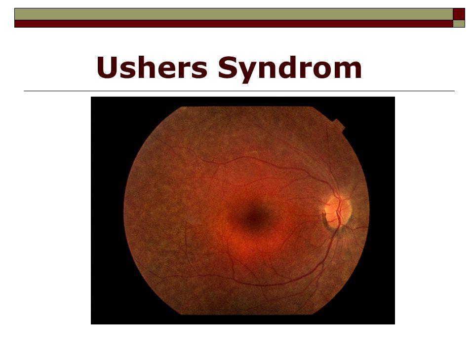 Usher typ II Usher typ I - Visual acuity life-long perspectives
