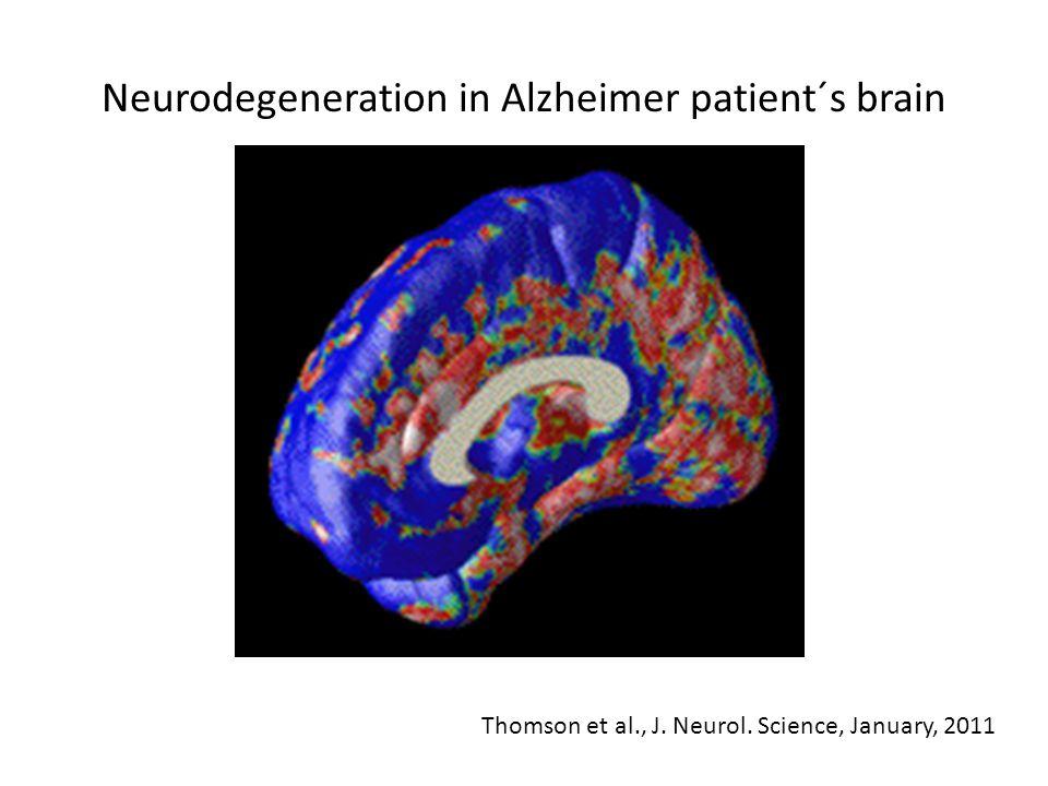 Neurodegeneration in Alzheimer patient´s brain Thomson et al., J. Neurol. Science, January, 2011