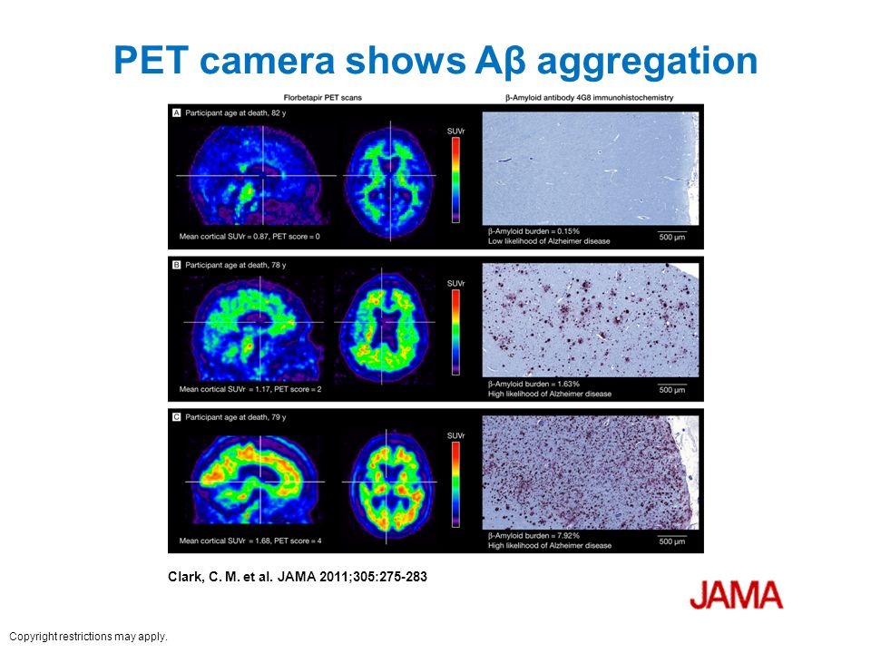 PET camera shows Aβ aggregation Clark, C. M. et al. JAMA 2011;305:275-283 Copyright restrictions may apply.
