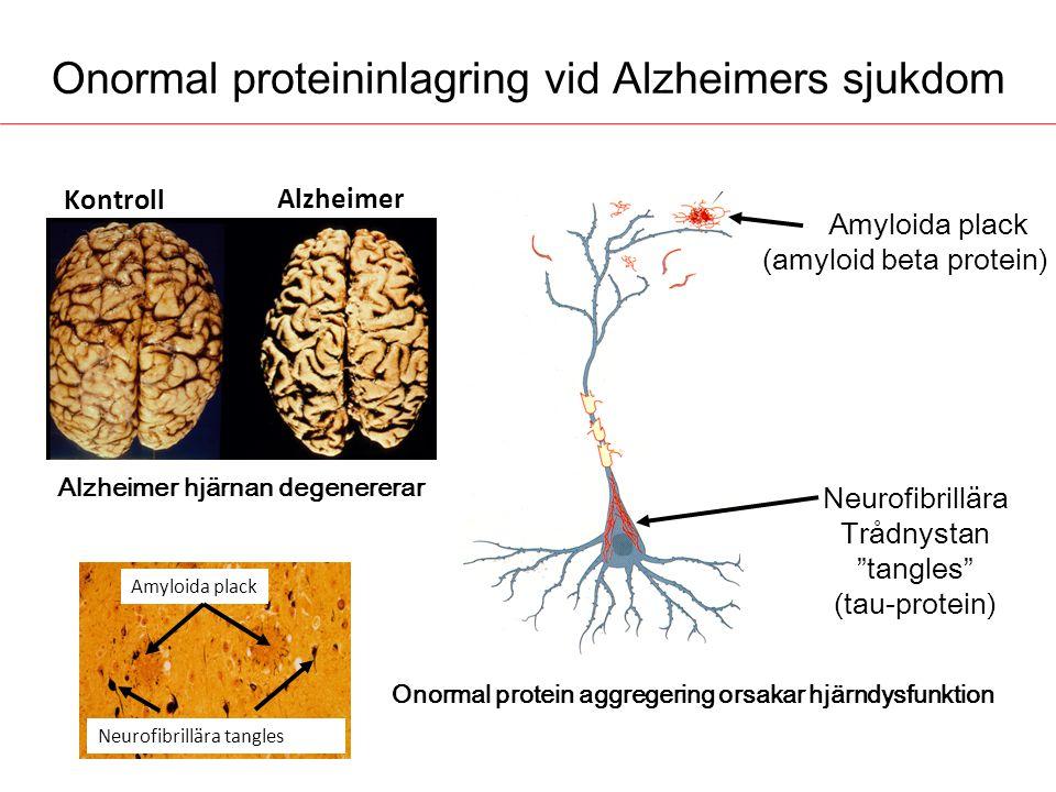 Neurofibrillära tangles Onormal proteininlagring vid Alzheimers sjukdom Kontroll Alzheimer Alzheimer hjärnan degenererar Amyloida plack (amyloid beta
