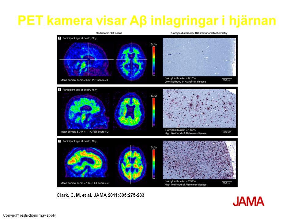 PET kamera visar Aβ inlagringar i hjärnan Clark, C. M. et al. JAMA 2011;305:275-283 Copyright restrictions may apply.