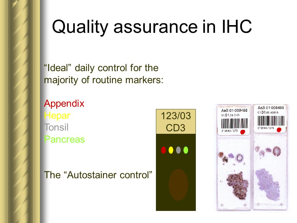 "Quality assurance in IHC ""Ideal"" daily control for the majority of routine markers: Appendix Hepar Tonsil Pancreas The ""Autostainer control"" 123/03 CD"