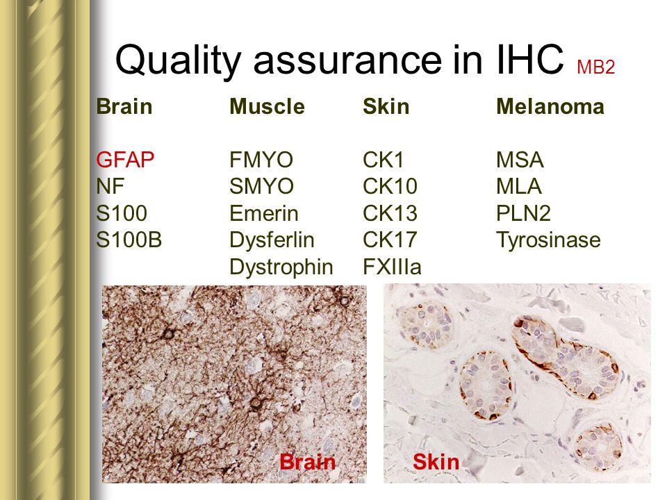 Quality assurance in IHC MB2 BrainMuscleSkinMelanoma GFAPFMYOCK1MSA NFSMYOCK10MLA S100EmerinCK13PLN2 S100BDysferlinCK17Tyrosinase DystrophinFXIIIa Bra